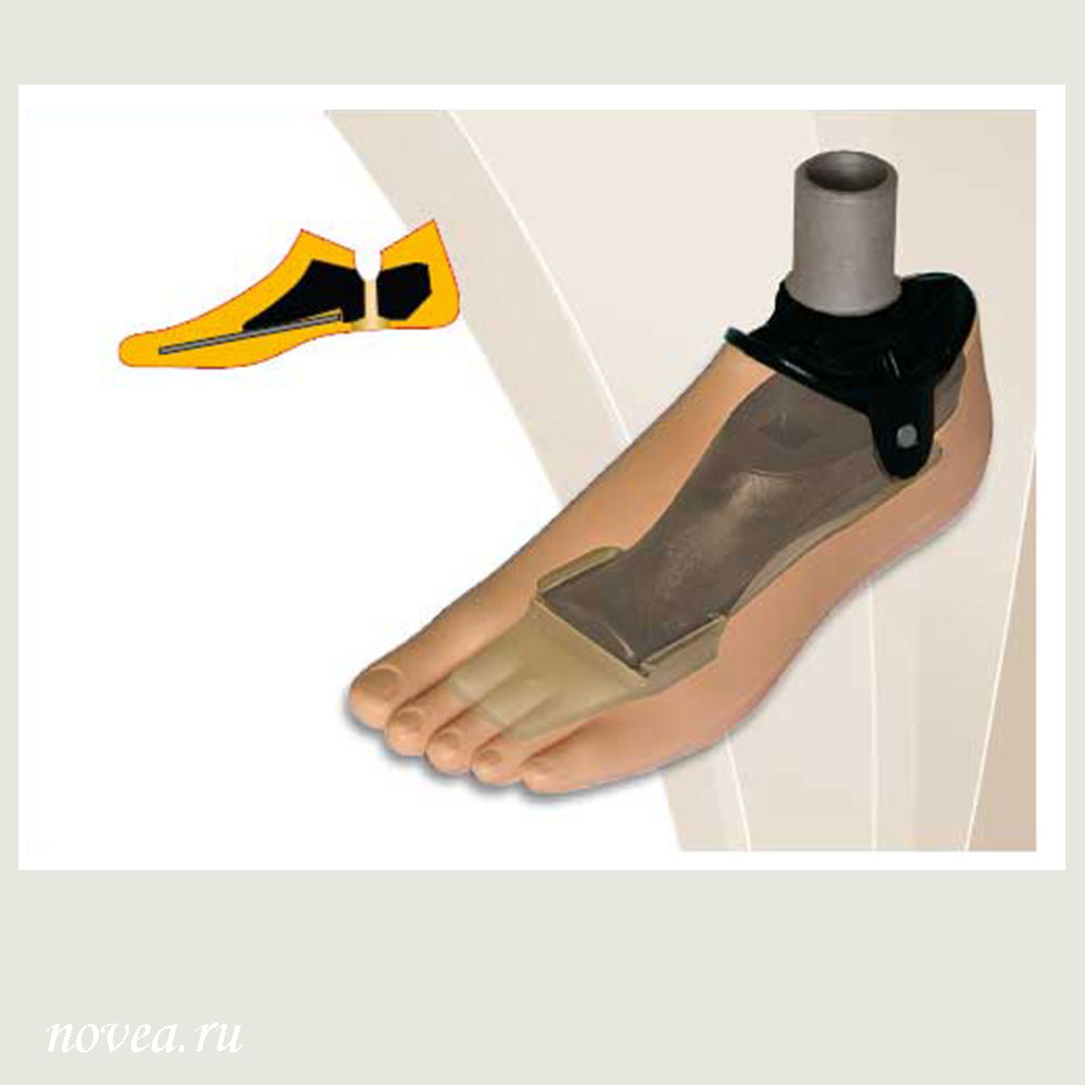 Male Prosthetic Foot with Carbon-Filled Polymer