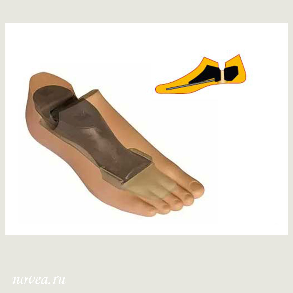 Male Foot Prosthesis 711