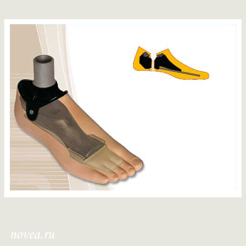 Female Foot Prosthesis with Improved Characteristics